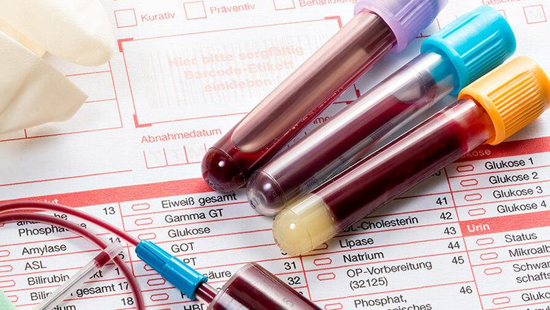 Як позначається загальний гемоглобін в аналізах